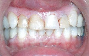 Discolored and decayed composite restorations