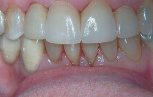 All-porcelain crowns (caps) that are more translucent and life like