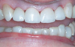 New all porcelain crowns