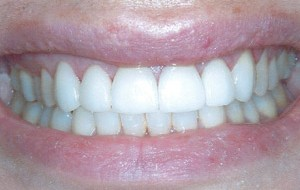 New porcelain veneers