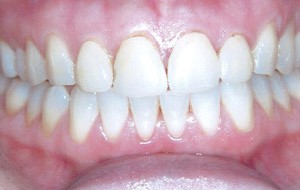 Older chipped and decayed veneers