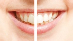 bleached teeth shutterstock_270210272